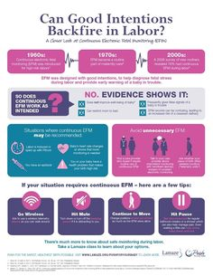 Electronic Fetal Monitoring in Labor: For Your Safety... But Is it Always Safe?