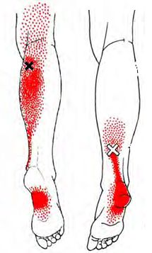 """trigger point dry needling Trigger point therapy aka """"Dry Needling"""" aka The Sundala Method™ Sundala, is an extremely effective technique that uses the insertion of fine acupuncture nee… Qi Gong, Massage Tips, Massage Techniques, Facial Massage, Foot Massage, Acupuncture Points, Acupressure Points, Dry Needling Trigger Points, Massage Therapy Career"""