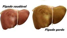 O fígado é um órgão muito importante para eliminar toxinas.Além disso, possui várias funções, como:1. Sintetiza glicose, proteína e enzimas2. Armazena nutrientes3. Produz a bílis