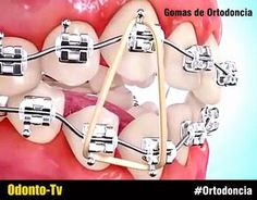 gomas-ortodoncia