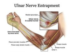 Ulnar Nerve Injury : Cause, Symptom, Treatment, Exercise Elbow Pain, Neck Pain, Hand Therapy, Massage Therapy, Massage Room, Occupational Therapy, Physical Therapy, Ulnar Nerve Entrapment, Cubital Tunnel Syndrome