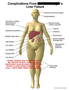 liver pain advice and symptoms explained. find out what to do if, Sphenoid