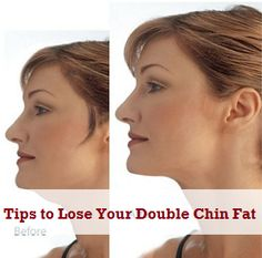 7 Tips to Lose Your Double Chin Fat