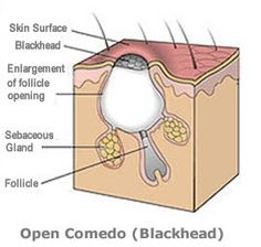 Sifa's Corner: Nightmare with Blackheads!