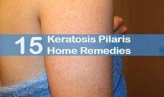 Keratosis Pilaris (KP) is a most common skin disorder which can be faced by the people of all age groups but more common in women rather than men particularly in puberty, pregnancy and child birth. It is rough patches and small bumps that occur on the upper arms, cheeks, thighs, legs and buttocks of the …