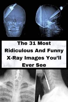 31 Shocking X-Ray Images That You Won't Believe Haven't Been Photoshopped Disney Background, Interesting News, New Year 2020, Laughing So Hard, New Pins, Weird Facts, The Funny, Amazing Photography, Funny Jokes