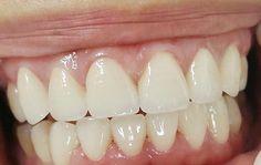 Răng sứ kim loại có tốt không, có đảm bảo thẩm mỹ và ăn nhai không? 2