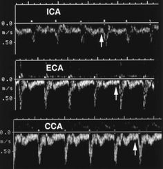 Normal Doppler Spectra of the carotid arteries. This links to a really long but really informative website about vascular ultrasound
