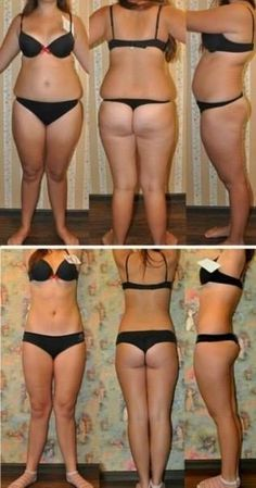 Pure forskolin before and after photos