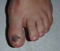 BLACK TOE NAIL FUNGUS TREATMENT