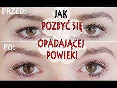 You have to see ! - How to get rid of drooping eyelids Face Massage, Natural Beauty Tips, Natural Glow, Beauty Recipe, Beauty Hacks, Make Up, Youtube, How To Plan, Eyes