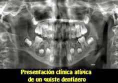 Presentación clínica atípica de un quiste dentígero | OVI Dental