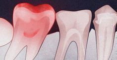 There are numerous reasons for tooth pain, and they're not all dangerous. Little cavities, gum inflammation, or mouth ulcers can all cause similar sensations that niggle at us and often hurt more at night time. Sore Tooth, Tooth Pain, Tooth Infection, Swollen Lymph Nodes, Gum Health, Oral Health, Receding Gums, Oil Pulling, Scrappy Quilts