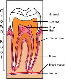 Dentin Hypersensitivity (abbreviated to DH, or DHS)-- also termed sensitive dentin, dentin sensitivity, cervical sensitivity, and cervical hypersensitivity is dental pain which is sharp in character and of short duration, arising from exposed dentin surfaces in response to stimuli, typically thermal, evaporative, tactile, osmotic, chemical or electrical; and which cannot be ascribed to any other dental disease