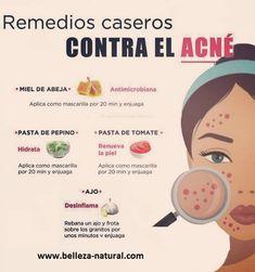 Health And Beauty Tips, Beauty Make Up, Beauty Care, Beauty Skin, Beauty Hacks, Facial Tips, Facial Care, Skin Tips, Skin Care Tips