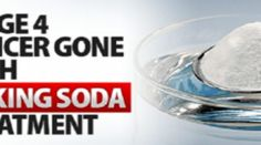 AMAZING STORY … A MAN USES BAKING SODA TO BEAT STAGE 4 CANCER