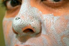 Hoy en la wikiguia te diremos como eliminar los antiestéticos puntos negros de la nariz.