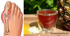 The gout is an issue that is seen in people who have digestion problems since the uric acid makes arthritis in the small bones and joints in the feet. Other gout effects are swelling and Colon Cleanse Detox, Natural Colon Cleanse, Gout Remedies, Natural Health Remedies, Gota A Gota, Types Of Arthritis, Uric Acid, Hcg Diet, Natural Medicine