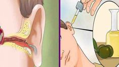 Remove The Ear Ache And Ear Infection With Natural Cures ! - Run Healthy Lifestyle How To Get Rid, How To Remove, Ear Infection Home Remedies, Tinnitus Symptoms, Ear Wax, Natural Cures, Au Natural, Natural Living, Natural Health
