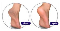 5remedes-naturels-pour-traiter-les-pieds-secs-et-abimes