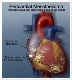 Different Types Of Mesothelioma