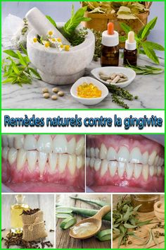 9 Remèdes naturels contre la gingivite