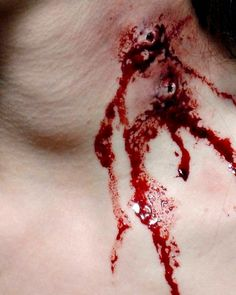 Gunshot wounds? Vampire bite? You'll never known ;)