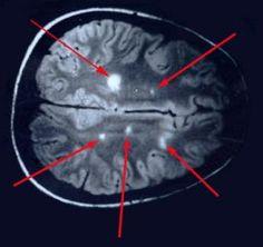 """Uns wurde ein englischsprachiger Fachartikel (""""Multiple sclerosis is Lyme disease: Anatomy of a cover-up"""") zugespielt, der an Brisanz kaum zu überbieten ist. Dieser Artikel erklärt, dass der wahre Grund für die Multiple Sklerose (MS) eine Infektion mit Borrelien-Erregern (Bb s.l., Borrelia burgdorferi) ist. Minutiös wird hier aufgelistet, dass diese Tatsache eigentlich schon seit 1911 bekannt …"""