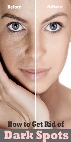 How to Get Rid of Dark Spots - Cute Health