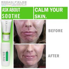Rodan and Fields Soothe regimen before and after!