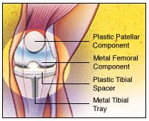Total Knee Replacement (Arthroplasty)
