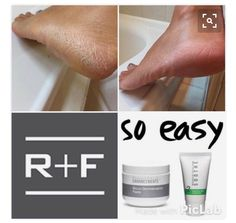 Rodan + Fields' Microdermabrasion Paste is one of my favorites! From cracked heals, to black heads, our Microdermabrasion Paste is ready to help! Rodan Fields Skin Care, My Rodan And Fields, Rodan And Fields Business, Rodan And Fields Canada, Love Your Skin, Good Skin, Rodan And Fields Microdermabrasion, Rodan And Feilds, Dry Skin Causes