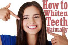 For Beautiful Smile: How to Whiten Teeth Naturally! #beautytips #hirabeautytips #prettysmile