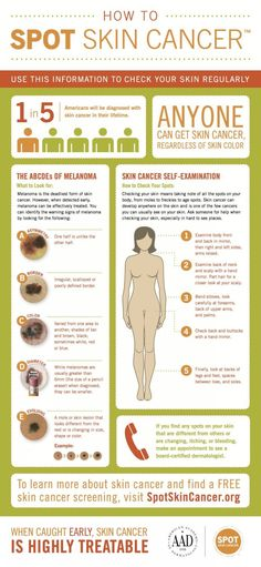 Check Your Body for Skin Cancer with the ABCDEs of Melanoma