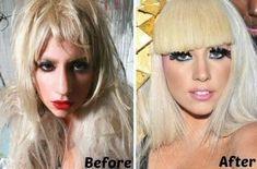 Lady Gaga Plastic Surgery Lady Gaga Plastische Chirurgie Promi-Make-up Lady Gaga Plastic Surgery, Types Of Plastic Surgery, Bad Plastic Surgeries, Plastic Surgery Gone Wrong, Plastic Surgery Photos, Celebrity Plastic Surgery, Lady Gaga Nose, Meghan Markle, Lady Gaga Before