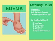 Edema-Swelling-essential-oil