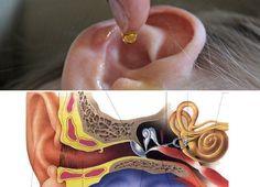 Se recomienda que al momento de quitar el exceso de cera, no se empleen los clásicos hisopos produciendo un tapón de cera en el oído y causando infección.