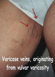 Assured. swollen vulva veins pregnancy