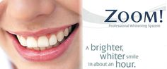 For enhancing the beauty of teeth zoom whitening is done. Dental Clinic, Delhi offers different dental treatments at best affordable price. There different dental procedures, including cosmetic dentistry, zoom waiting for improving the shades of teeth. Zoom Teeth Whitening, Teeth Whitening Procedure, Laser Dentistry, Cosmetic Dentistry, Wisdom Teeth Removal, Dental Veneers, Dental Cosmetics