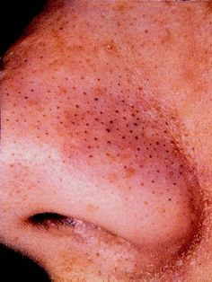 Blackhead Remedy: To tell the truth I had to post this just because the photo is so gross.