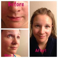 Thank you Mud Soap! She doesn't wear make up anymore! Seacretdirect.com/agentamanda