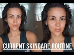 Nicole Guerriero's skincare routine featuring DHC Acne Spot Therapy - Current Skincare Routine | 2015