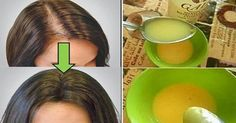 This simple remedy helps your hair growth! This simple remedy helps your hair growth! Natural Treatments, Natural Remedies, Hair Treatments, Herbal Remedies, Healthy Hair, Healthy Life, Healthy Food, Stay Healthy, Healthy Living