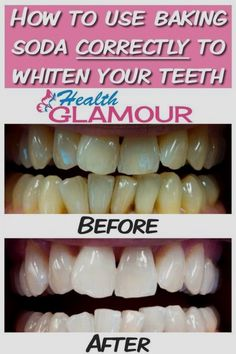 Natural Teeth Whitening Remedies How to use baking soda correctly to whiten your teeth - You should not spend money on expensive products if you have the yellowish teeth problem. Here is the most efficient, natural method to whiten your teeth! Teeth Whitening Remedies, Charcoal Teeth Whitening, Natural Teeth Whitening, Whitening Kit, Baking Soda Teeth, Baking Soda Shampoo, Teeth Health, Oral Health, Dental Health