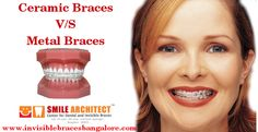 Dental braces are placed on the teeth to achieve straight. Smile Architect provides all types of dental braces treatment at affordable cost in India Braces Smile, Teeth Braces, Ceramic Braces, Invisible Braces, Teeth Straightening, Dental Braces, Tooth, Shape, Ceramics