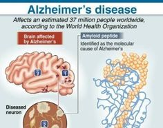 What is the cause of Alzheimer's disease Alzheimer's Symptoms, World Organizations, Alzheimers Awareness, Alzheimer's And Dementia, Neurons, Health Tips, Statistics, Mental Health