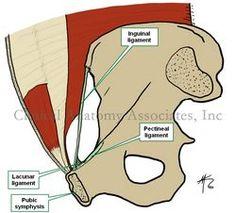 Lacunar (Gimbernat's) ligament Pectineal (Coopers) ligament