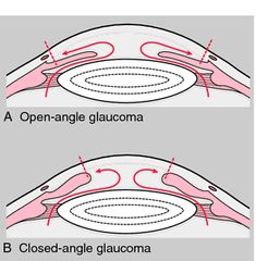 Diagram of Open-angle vs. Closed-angle Glaucoma Diagram of Open-angle vs. Eye Anatomy, Eye Facts, Medical Dictionary, Rn School, Self Treatment, Eyes Problems, Eye Doctor, Pharmacology, Optician