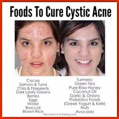 Foods To Cure Cystic Acne