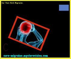 Ear Pain With Migraine 185640 - Cure Migraine